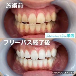 【歯で印象が変わる】