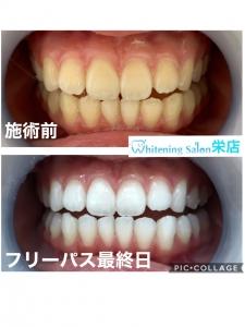 【印象を変えたい方は、歯を綺麗にしましょう!】