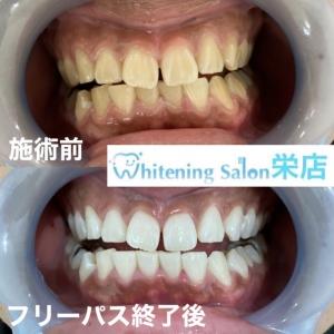 【歯磨きが日本に伝わったのはいつ?】
