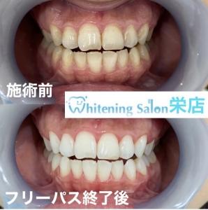 【歯茎が腫れる=歯槽膿漏?】