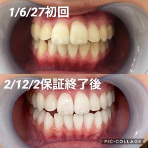 【歯磨き後のうがいは何回?】