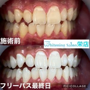 【歯磨きをしないとどうなる?】