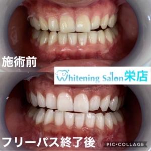 【歯ブラシの交換目安】
