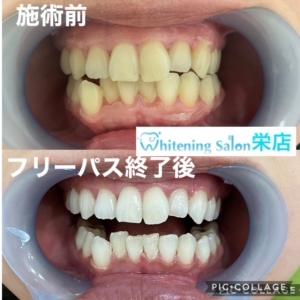 【歯茎エステとは??】
