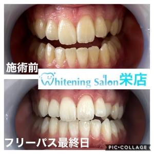 【歯と食べ物の関係性】