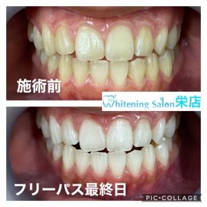 【歯の色は何故違うのか】