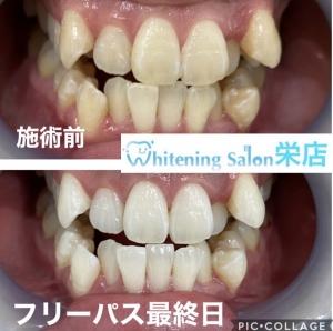 【歯ぎしりはストレスが原因?】