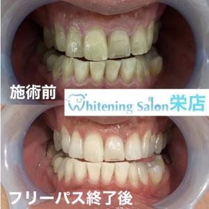 【歯に悪影響を及ぼす生活習慣】