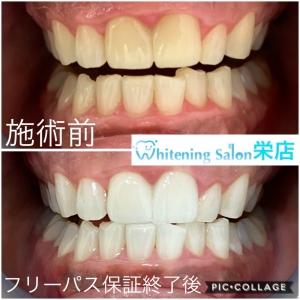 【歯ブラシの選び方】