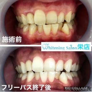 【歯周病と食事】