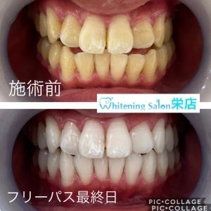【虫歯と体】