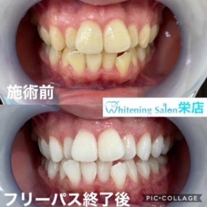 【アマルガム銀歯】