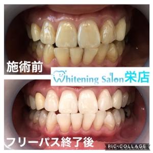 【歯と口内炎の関係性】