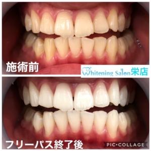 【歯の形の種類】