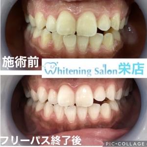 【歯のヒビは放置すると危険?】