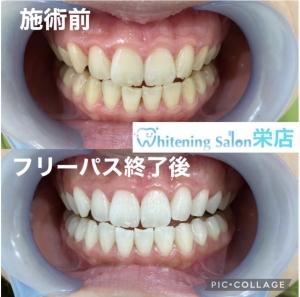 【歯が欠けた場合の対処法】