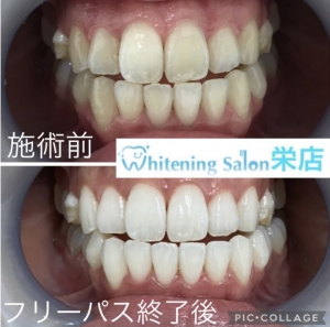 【歯に物が挟まる原因・対処法】