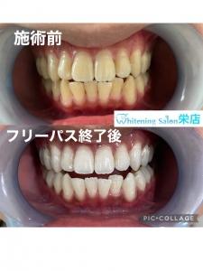 【歯医者での麻酔について】