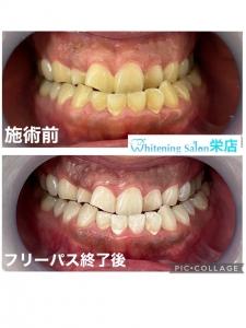 【子供の歯の虫歯治療】