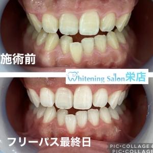 【歯磨きについて】