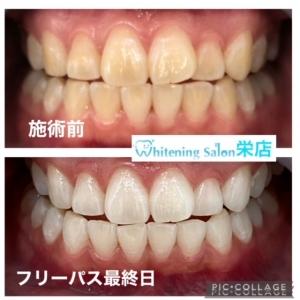 【歯の再石灰化とは?】