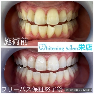 【乳歯の虫歯を放置するリスク】