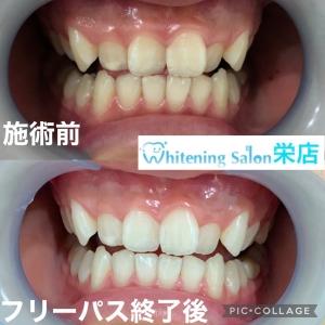 【歯や歯茎を傷めつける歯ぎしり】