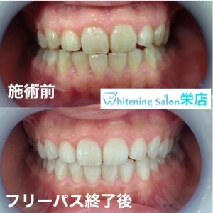【人生が変わる?!白い歯はあなたはを幸せにします】