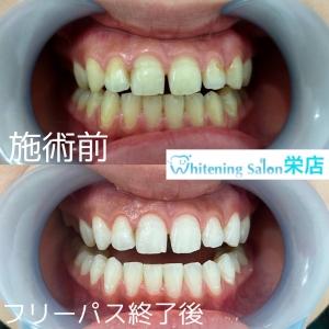 【妊娠中の歯科治療】