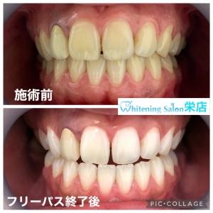 【歯を綺麗に保つには】