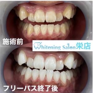 【一般人も歯が命の時代】