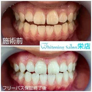 【虫歯の原因】