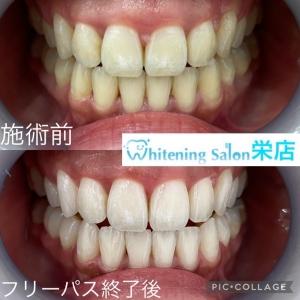 【歯並びに関わる悪い癖】