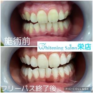 【歯間ブラシを使う時の注意点】