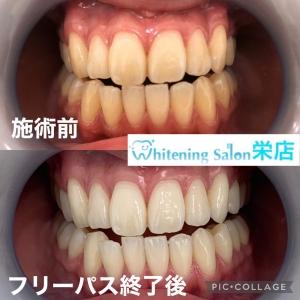 【なぜ歯は変色する?】