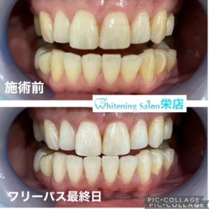 【虫歯の本当の原因】