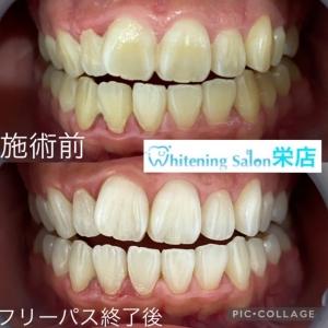 【歯並びが変わる?!】