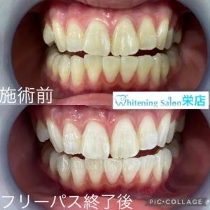 【子供の歯が黄ばむ原因】