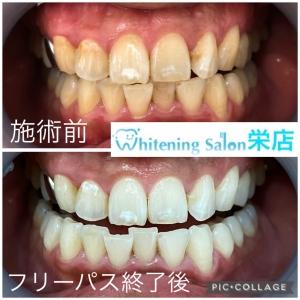 【乳歯の虫歯予防】