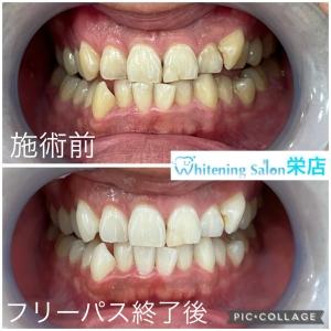 【歯を長持ちさせるには噛み方も大切です!】