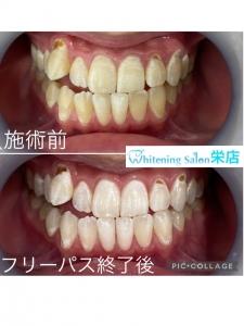 【セラミックの歯の寿命】