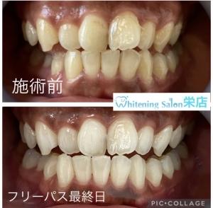 【入れ歯のお悩み】