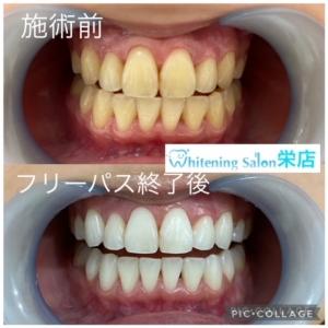 【定期歯科】
