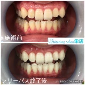 【歯を失う悪影響】