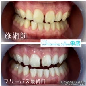 【歯周病予防】