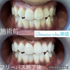 【おせんべいで虫歯予防?!】