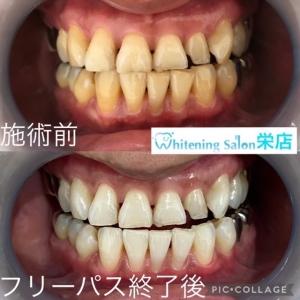 【歯の役割とは?】