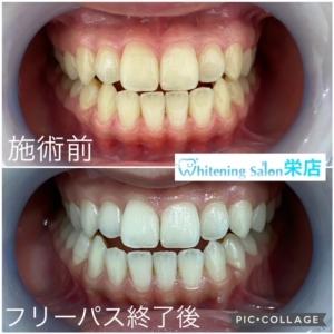 【虫歯の原因と進行】