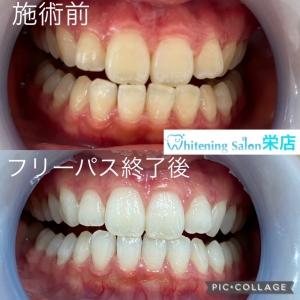 【歯のセラミック治療の特徴】