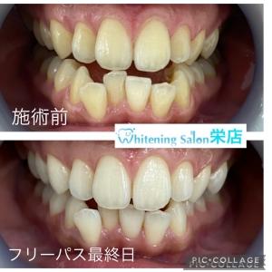 【子供の虫歯の特徴】